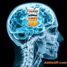 The innovative formula for AddieUP Focus and Energy Supplements was developed to provide protection to the brain and body, not just delivering powerful energy and focus. #addieup #nootropics #nootropic #brainfuel #moreenergy #focus #instagood #supplements #smartpill #stayfocused