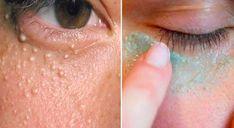 Em algumas pessoas, aparecem umasbolinhas brancasao redor dos olhos que são conhecidas comoMiliumoi Milia. Também chamadas de bolinhas de gordura, são pequenos cistos de queratina fechados que surgem em algumas zonas do tosto como as pálpebras ou nas maçãs do rosto e que são provocadas pelas várias capas da nossa pele com células mortas acumuladas. Embora o milium possa afetar qualquer pessoa, pessoas com pele oleosa ou acneica são mais propensas a sofrer deste problema. AS MELHORES…