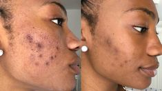 Suffer from Acne Scars ? Laser acne scar removal is a great option for acne scars on any area of the body. Laser Acne Scar Removal, Skin Peeling On Face, Natural Skin Tightening, Remover Manchas, Chemical Peel, Acne Remedies, Acne Treatment, Skin Treatments, Acne Scars