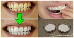 Healthy and white teeth is something that everybody desires. But to achieve this, it