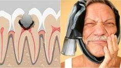 Nemučte sa bolesťou zubov, zmiešajte tieto dve zložky a priložte na zuby, bolesť zmizne za pár sekúnd | MegaZdravie.sk Heal Cavities, White Teeth, Organic Beauty, Natural Remedies, Health Tips, Detox, Health Fitness, Healthy, Clever