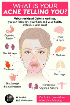 Do you ever wonder why those acne breakouts appear at the same spot? The concept of face mapping can exactly tell you how different flare ups of acne or pimples in certain locations all have various c Skin Tips, Skin Care Tips, Skin Care Regimen, Beauty Care, Beauty Skin, Beauty Tips For Skin, Beauty Secrets, Gesicht Mapping, Acne Breakout