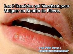 How do you get rid of a cold sore? Home remedies for a cold sore that will have it gone in 3 days. Cold Sore Treatment, Genital Herpes, Get Rid Of Cold, Essential Oils For Colds, Cold Home Remedies, Homeopathy, How To Get Rid, Home Remedies, Skin Care