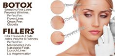 What are Botox and Fillers? Botox smoothes fine lines and prevents wrinkles. Fillers fill creases and folds and add volume and fullness.