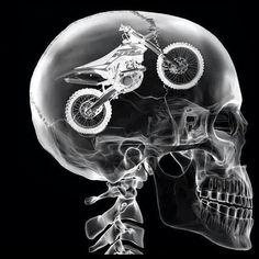 Bikes on the brain