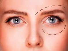 Top Plastic Surgeons, Eyebrow Lift, Droopy Eyelids, Eyelid Surgery, Face Yoga, Face Massage, Cosmetic Procedures, Real Beauty, Eye Make Up