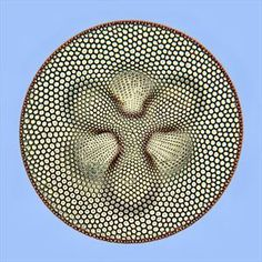 Diatom Coscinodiscus excavatus - 2014 // HM // Mr. Robert Lavigne // Montreal, Canada