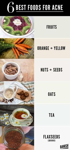 What foods to eat for beautiful, clear, and acne-free skin. How to clear hormonal acne. How to get rid of hormonal acne. How to get rid of acne. How to get clear skin Food For Acne, Foods Good For Acne, Foods To Clear Acne, Foods For Healthy Skin, Best Foods For Skin, Back Acne Treatment, Acne Treatments, Natural Acne Treatment, Acne Scar Removal