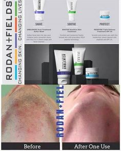 Men need great skincare too!  R+F has you covered with Beyond the Shave.  Combat acne, sensitivity AND aging with this powerful multi-med regimen!
