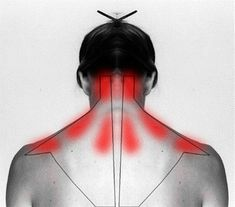 How To Treat And Cure Stiff Neck Or Shoulder To Ease The Pain.