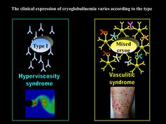 Clinical features type I vs mixed cryoglobulinemia