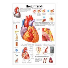 häufige Herzerkrankungen Lehrtafel Anatomie 50 x 67cm ...