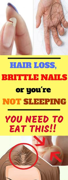 EAT THIS IF YOU HAVE HAIR LOSS, BRITTLE NAILS OR YOU'RE NOT SLEEPING!!! #hair #loss #brittle #nails #eat #sleep
