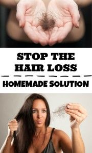Lotion against hair loss with thyme and rosemary