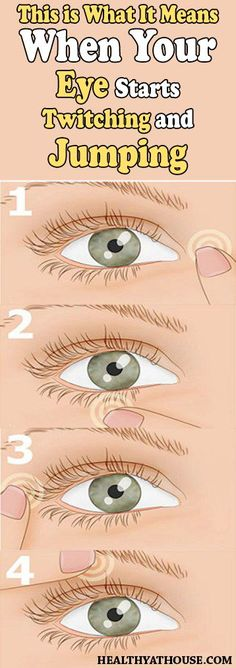 EYE TWITCHING IS USUALLY CAUSED BY FATIGUE