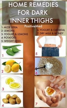 home remedies for dark inner thighs