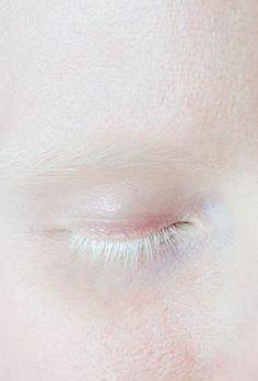 Albino Model Fashion Eye