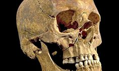 Now Richard III's skull may prove he Isn't related to the bones thought to be of the princes in the tower