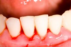 Bleeding or sore gums? You may have periodontal disease, but we can help; learn how here: http://sanadental.ca/periodontal-disease/ #oralhealth #bleedinggums #gingivitis #edmontondentist #edmonton