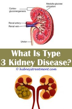 Jolting Ideas: Chronic Kidney Disease Stages Creatinine Levels recipes for kidney disease.Ckd 5 Kidney Disease stages of chronic kidney disease based on creatinine clearance.Difference Between Chronic Kidney Disease And End Stage Renal Disease. Stage 3 Kidney Disease, Kidney Dialysis, Polycystic Kidney Disease, Chronic Kidney Disease, Kidney Infection Symptoms, Kidney Detox Cleanse, Human Kidney, Bnp, Kidney Failure
