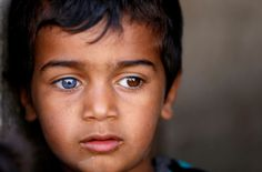 A boy with differently colored eyes waits in the doorway of his…