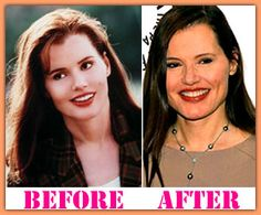 Geena Davis plastic surgery before and after Geena Davis Plastic Surgery Geena Davis, Plastic Surgery, Medical, Celebs, Cosmetics, Celebrities, Medicine, Celebrity