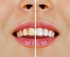 Cómo blanquear los dientes con productos naturales sin tener que recurrir a tratamientos invasivos e irreversibles.