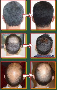 Penumbuh Rambut Alami – Keindahan rambut terlihat ketika seseorang memiliki rambut yang lebat dan berkilau. Namun tidak