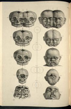 Head and skull of malformed infants; conjoined twins, bilateral cleft lip and holoprosencephaly From Surgical Anatomy by Joseph Maclise, published London by J. Churchill, 1856