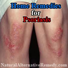 Top 20 Home Remedies for Psoriasis | Natural Alternative Remedy