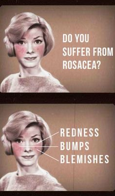 Many of us with chronic Illness have rosacea.