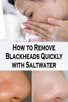 Watch This Video Effective Natural Remedies To Remove Blackheads Ideas. Irresistible Natural Remedies To Remove Blackheads Ideas. Blackhead Remedies, Blackhead Remover, Herbal Remedies, Health Remedies, Skin Care Regimen, Skin Care Tips, Natural Sleep Remedies, Natural Cures, Skin Care Routine For 20s