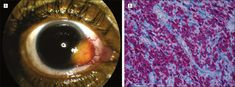 Mycobacterium avium Complex Conjunctival Granuloma in a Human Immunodeficiency Virus–Positive Patient. Arch Ophthalmol. 2011;129(12):1609. doi:10.1001/archophthalmol.2011.340.