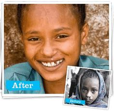Operation Smile - with just a little money they can give a smile where there was none.