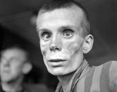 An emaciated 18-year-old Russian girl during the liberation of Dachau concentration camp, April, 1945