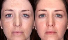 Home remedies for melasma treatment and cure. How to treat melasma at home during pregnancy? Melasma remedies to cure it naturally and fast. Facial Treatment, Beauty Skin, Health And Beauty, Diy Beauty, Beauty Tips, Chemisches Peeling, Pregnancy Health, Women Health, Skin Products