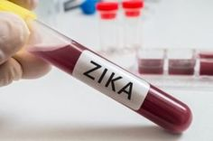 Study Proves Zika Virus Directly Infects Brain Cells