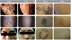 Özellikle dövme sildirmek isteyen insanların en çok başvurdukları yöntemler arasında lazerle dövme sildirme birinci sırada bulunuyor. Çünkü dövmesini sildirmek isteyen birinin ilk başvurması gereken yöntem iz kalmaması ve daha başarılı olduğu için lazerle dövme sildirme yöntemidir . Genellikle son yıllarda lazerli le dövme silidirme dışında dövme sildirme yöntemi bulunmaz.Peki lazerle dövme sildirme işlemi ile dövme tamamen çıkar mı?