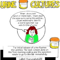 For urine culture only