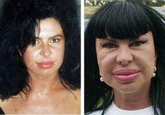 قبل و بعد عمليات تجميل