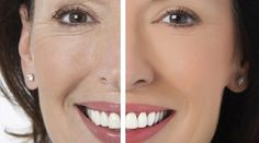 Contents: What is Facial Rejuvenation? Rejuvenating Masks for Face. Natural Detox Drinks, Facial Rejuvenation, 54 Kg, Lose Body Fat, Anti Aging Cream, Face Care, Health And Beauty, Beauty Hacks, Health Fitness