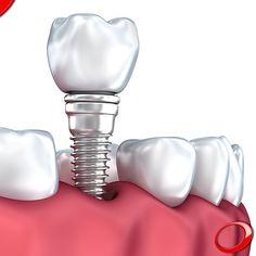 A colocação de Implantes Dentários pode ser a solução que necessita para recuperar o seu sorriso. www.pnid.pt