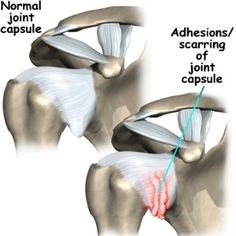 Natural Cures For Frozen Shoulder- I had this, and it is not fun!