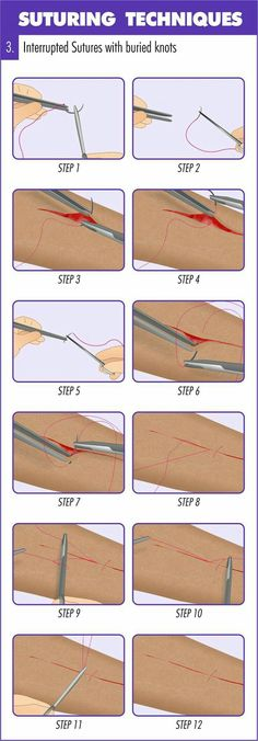 This infographic guides you step by step through the process of suture. Find more articles related to cuts and bleeding here: http://insidefirstaid.com/bleeding #suture #bleeding #emt #ems #paramedic #doctor #medicine #nurse #surgery #bleeding #first #aid