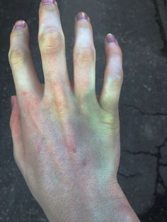 My hand uused to look like this