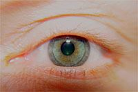 thinking of going back to my rgp as the toric lenses are terrible....gas permeable or gp lens on an eye