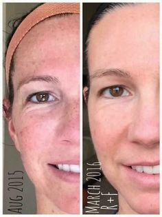"""Summer is here. Instead of causing more sun damage, let Reverse help prevent any further damage and reverse that old sun damage!!  See what Beck has to say-  """"Here are MY before and after pics with Rodan+Fields! (9 months of consistent use) Not only have these clinically proven products transformed my skin, this company is also giving me the chance to transform the future for my family and other families as well!""""  #nowsthetime  #whynotyou #changeyourlife"""
