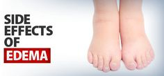 What Are The Side Effects of Edema? - ProgressiveHealth.com