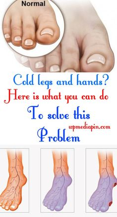 Cold Legs And Hands ? Here Is What You Can Do To Solve This Problem