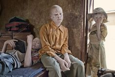 The Tanzanian Albinism Society has an estimated registered people with albinism, but they estimate that Tanzania has a much larger population of albino people who are either unaware of the charity's work or choose to stay in hiding Tanzania, Witch Doctor, Persecution, Meeting New People, Hanging Out, Hunters, Ghosts, Shelter, Larger